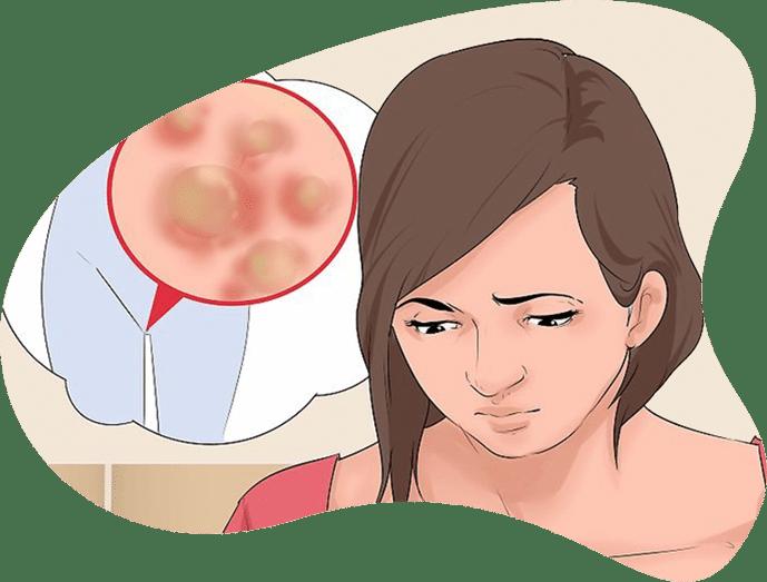 عدم درمان زگیل تناسلی
